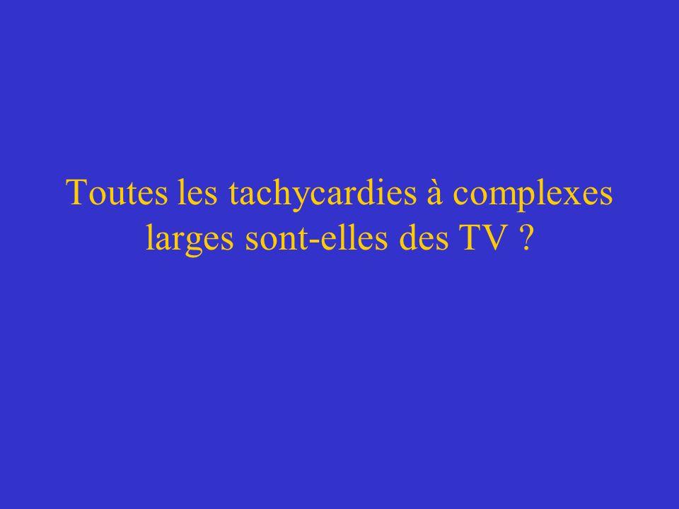 Toutes les tachycardies à complexes larges sont-elles des TV