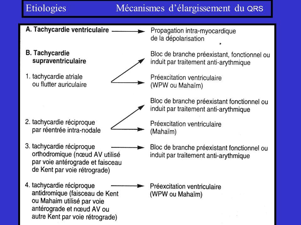 Etiologies Mécanismes d'élargissement du QRS