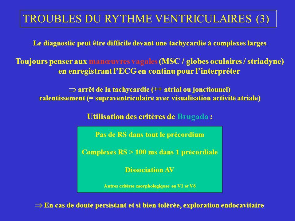 TROUBLES DU RYTHME VENTRICULAIRES (3)