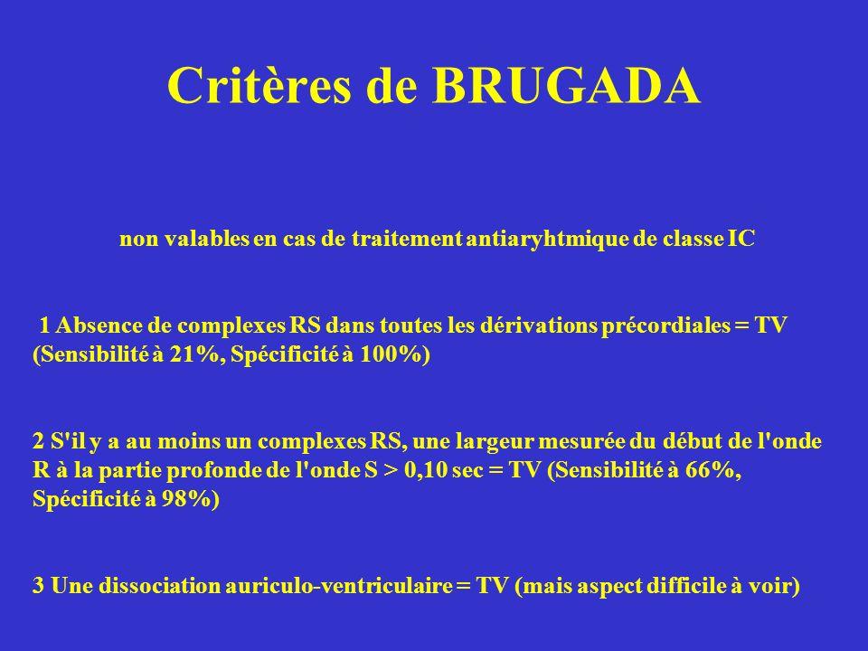 Critères de BRUGADA non valables en cas de traitement antiaryhtmique de classe IC.