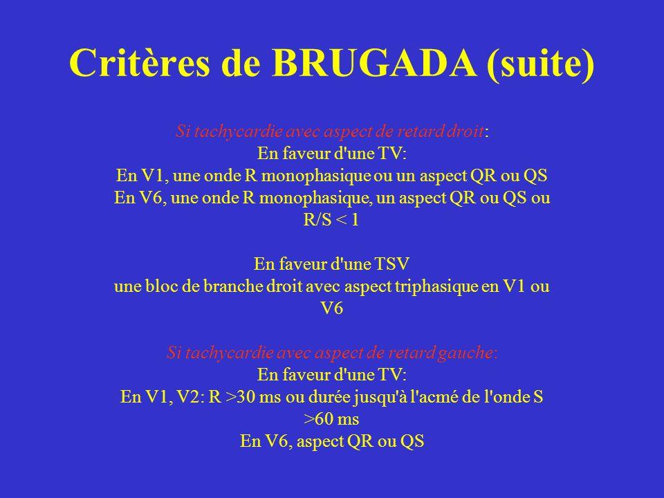 Critères de BRUGADA (suite)
