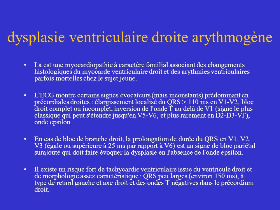 dysplasie ventriculaire droite arythmogène