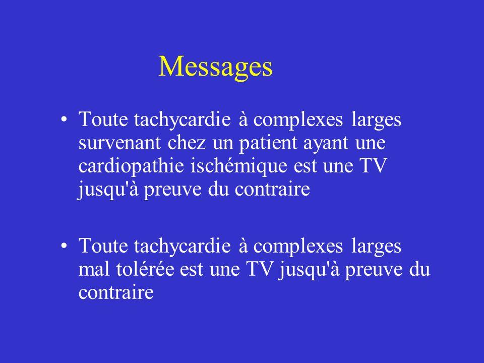 Messages Toute tachycardie à complexes larges survenant chez un patient ayant une cardiopathie ischémique est une TV jusqu à preuve du contraire.