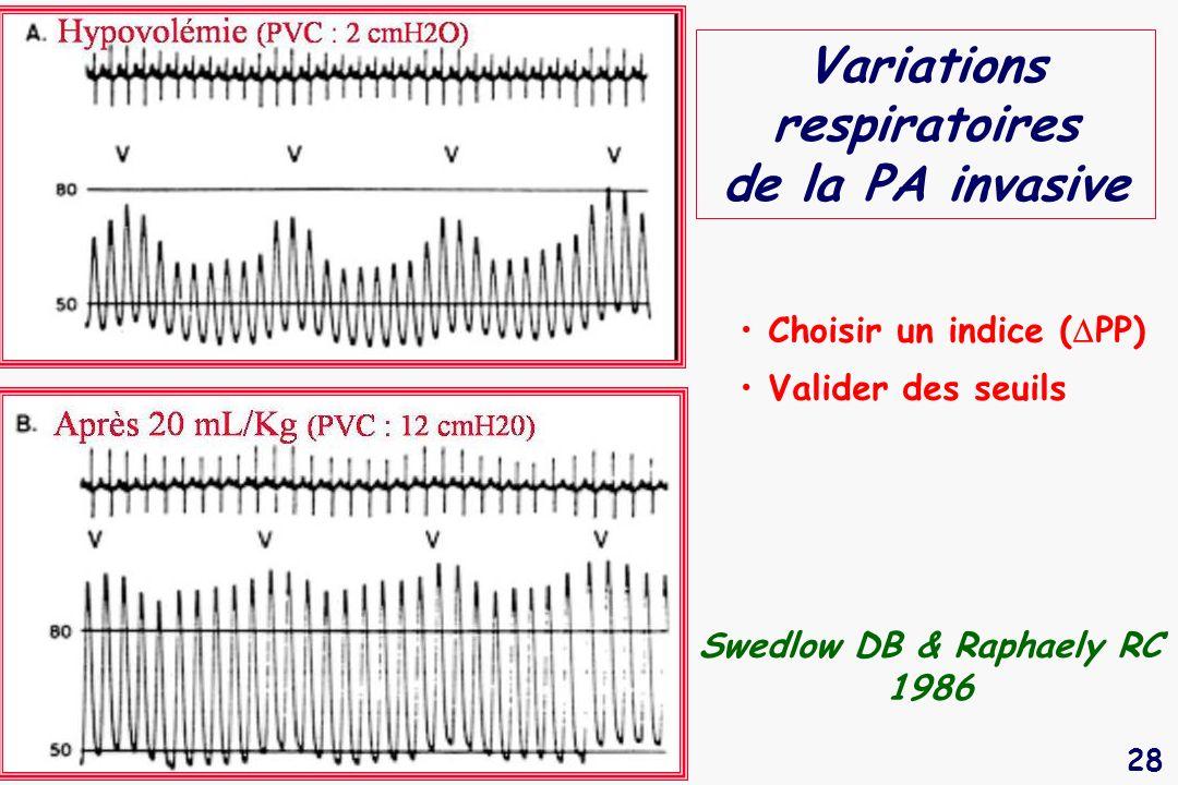 Variations respiratoires de la PA invasive