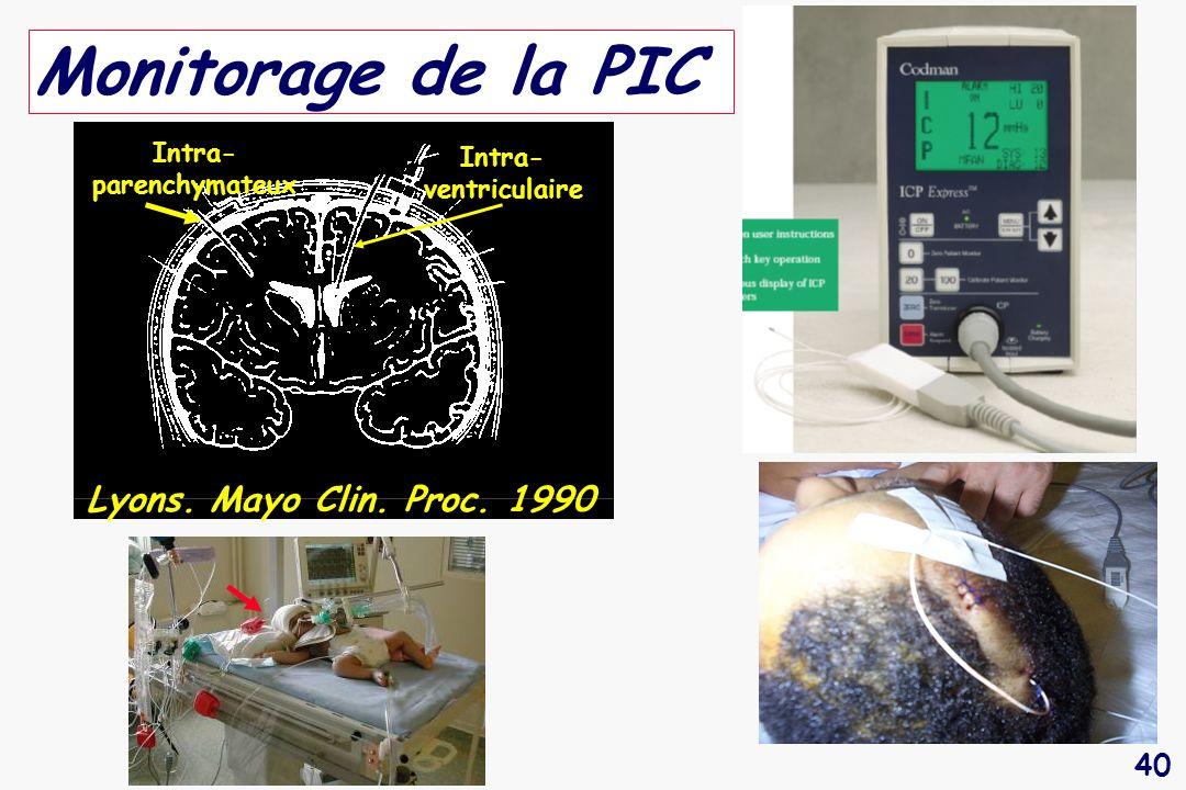 Monitorage de la PIC Lyons. Mayo Clin. Proc. 1990 Intra-