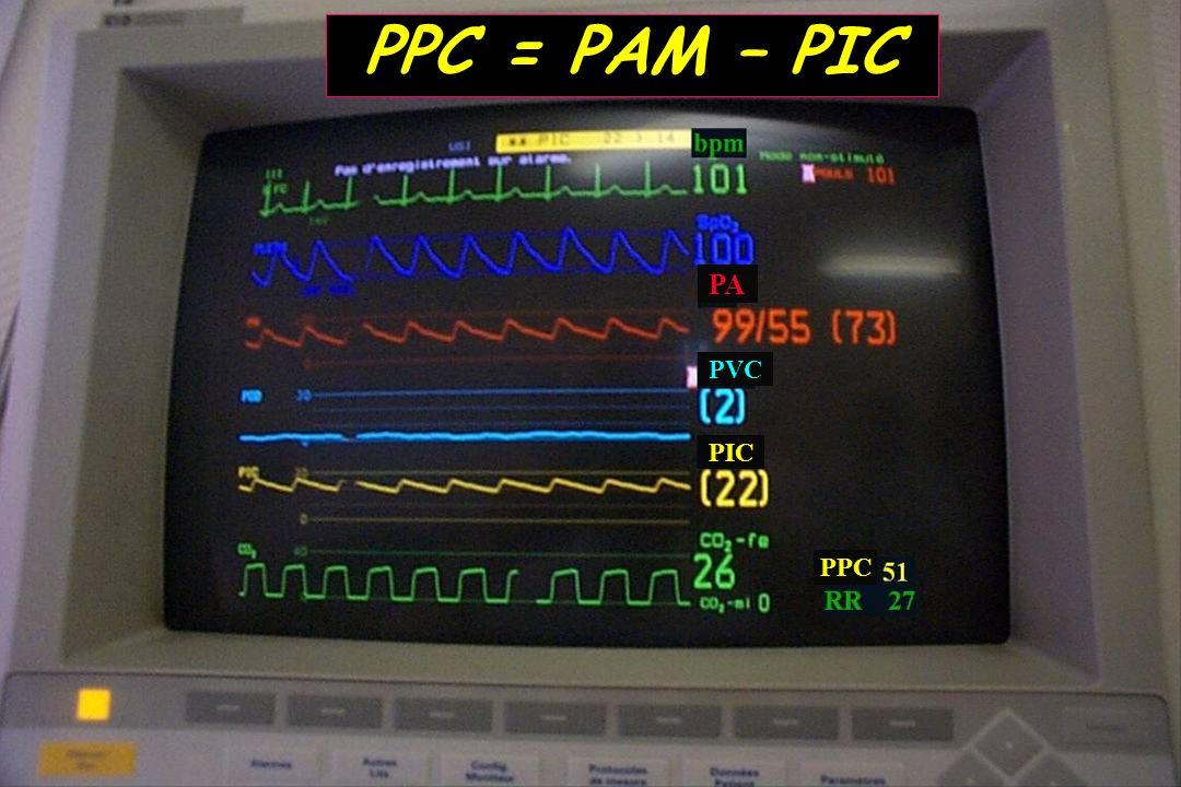 PPC = PAM – PIC PA PVC PIC PPC