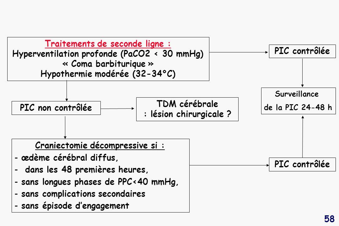 TDM cérébrale : lésion chirurgicale Craniectomie décompressive si :
