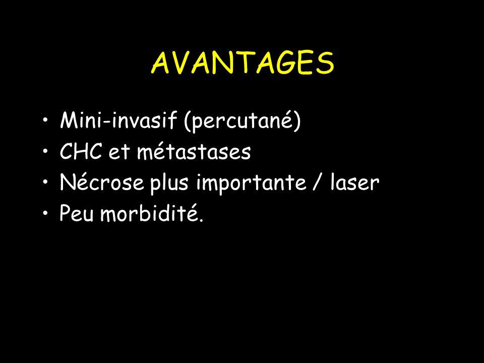 AVANTAGES Mini-invasif (percutané) CHC et métastases