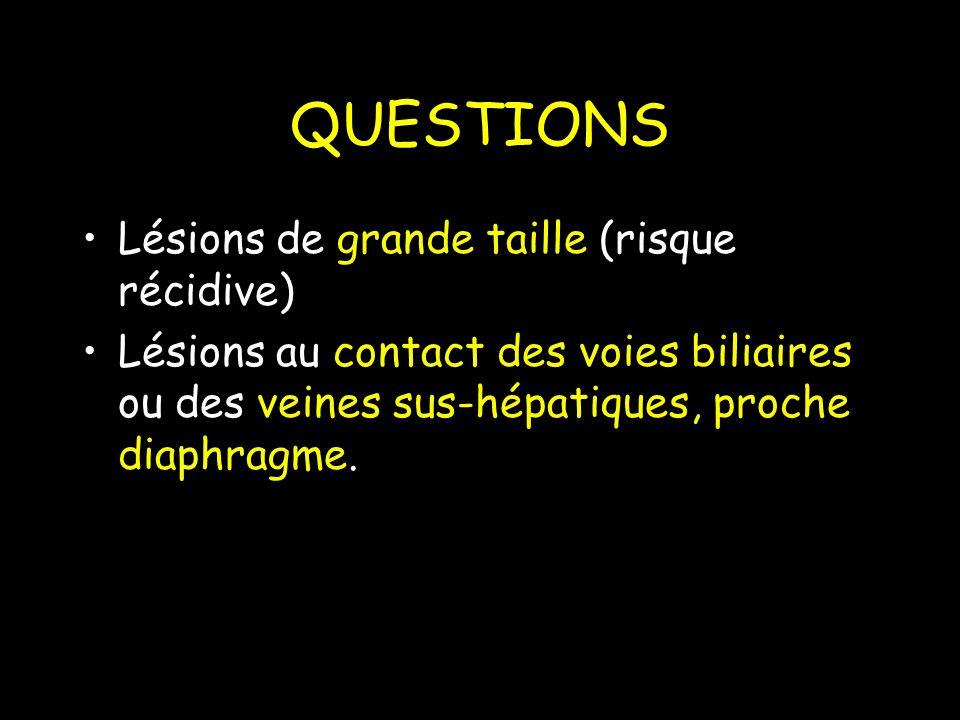 QUESTIONS Lésions de grande taille (risque récidive)