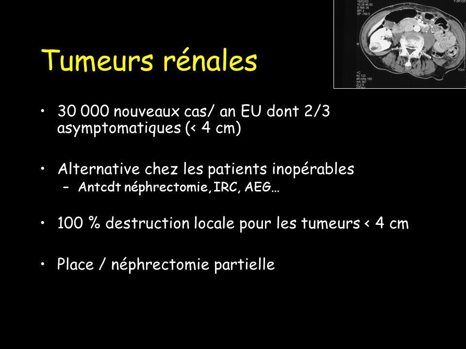 Tumeurs rénales 30 000 nouveaux cas/ an EU dont 2/3 asymptomatiques (< 4 cm) Alternative chez les patients inopérables.
