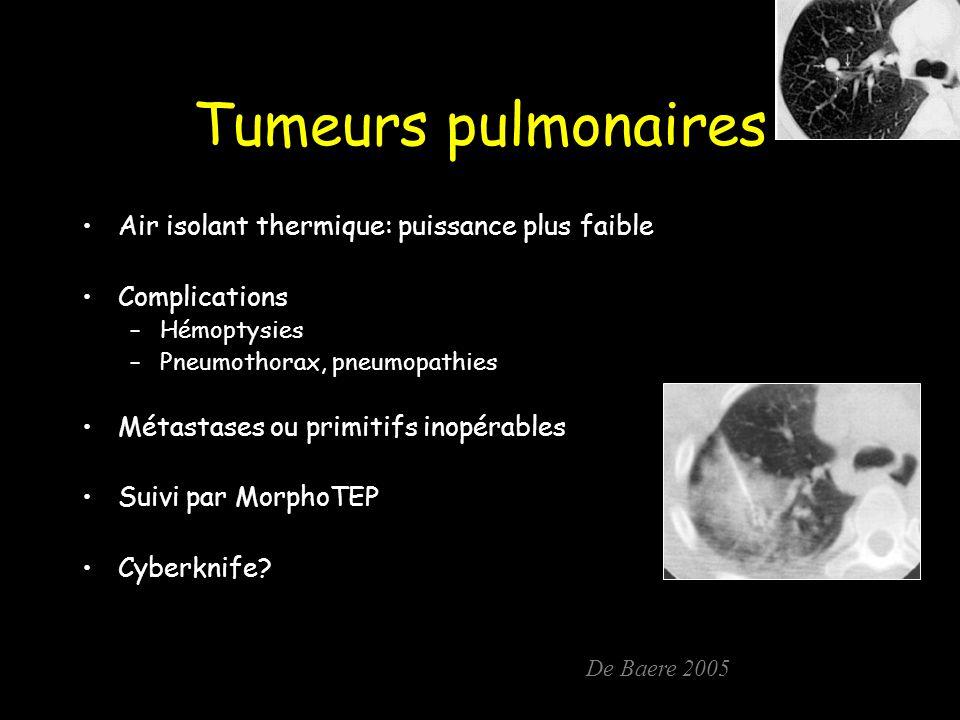 Tumeurs pulmonaires Air isolant thermique: puissance plus faible