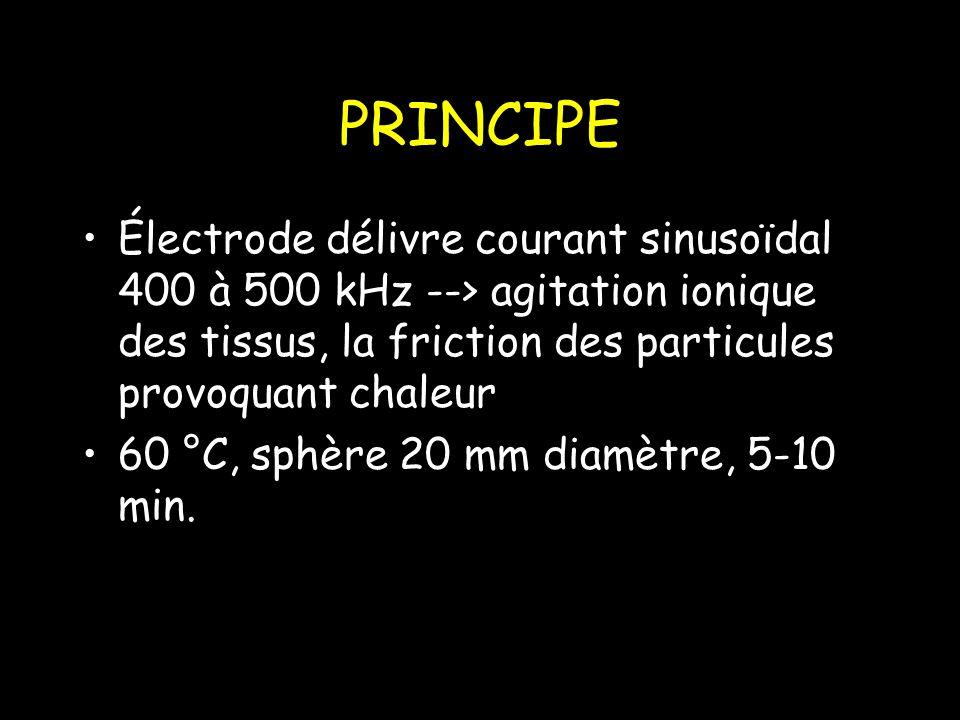 PRINCIPE Électrode délivre courant sinusoïdal 400 à 500 kHz --> agitation ionique des tissus, la friction des particules provoquant chaleur.