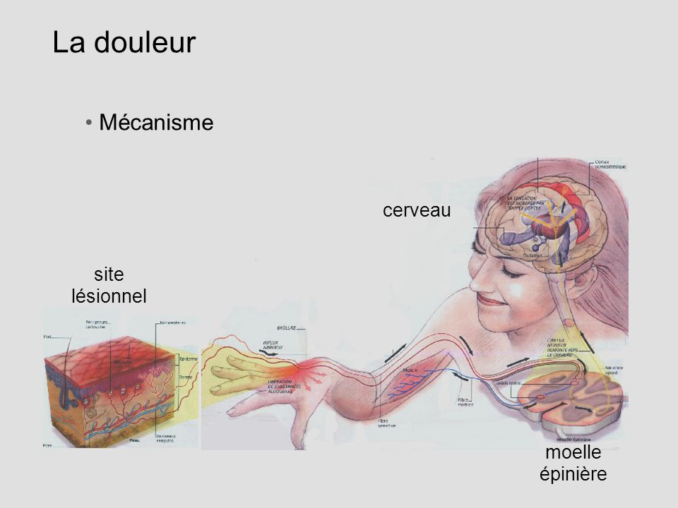 La douleur Mécanisme cerveau site lésionnel moelle épinière