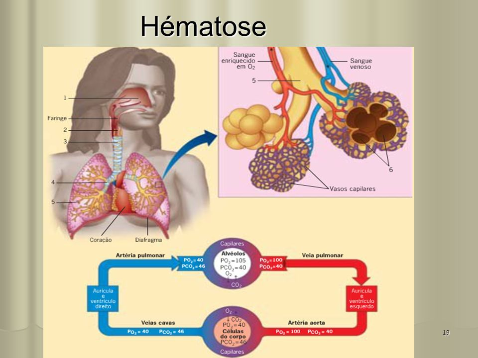 Hématose