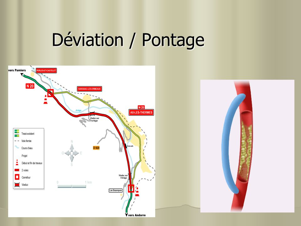 Déviation / Pontage