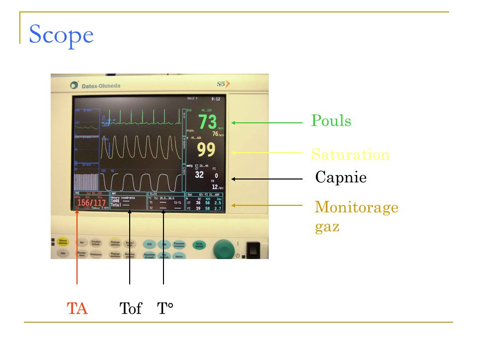 Scope Pouls Saturation Capnie Monitorage gaz TA Tof T°