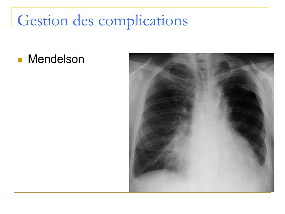 Gestion des complications