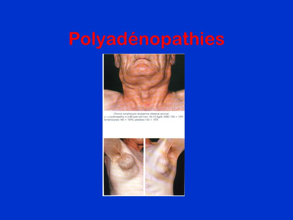 Polyadénopathies