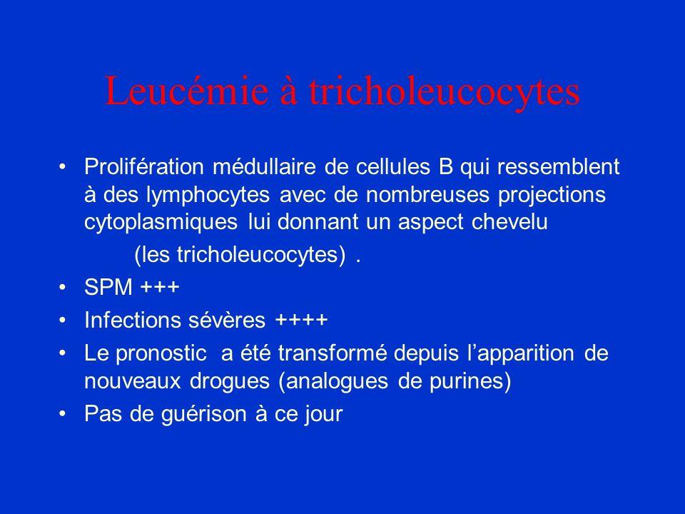 Leucémie à tricholeucocytes