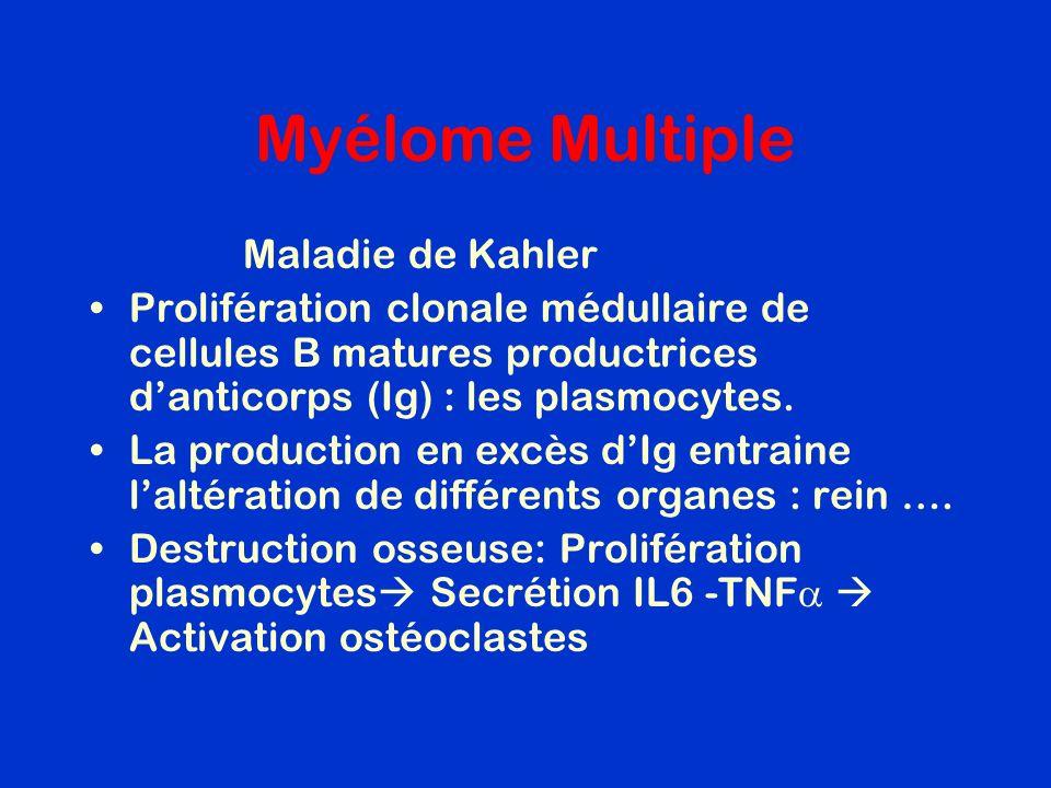 Myélome Multiple Maladie de Kahler