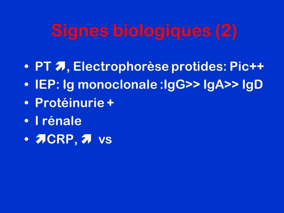 Signes biologiques (2) PT , Electrophorèse protides: Pic++