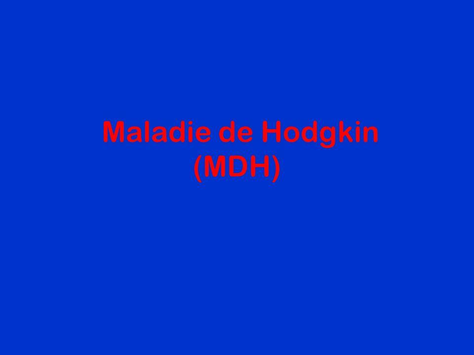 Maladie de Hodgkin (MDH)