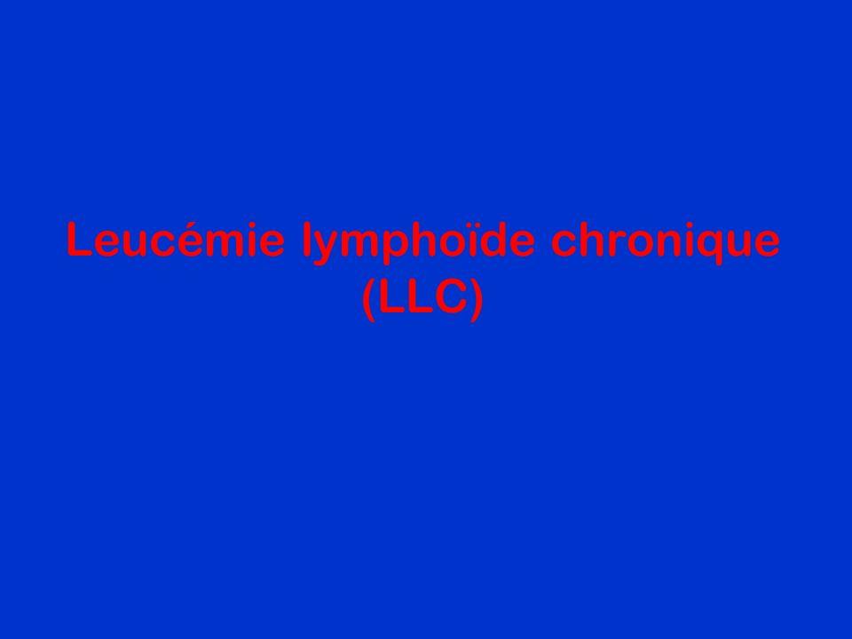 Leucémie lymphoïde chronique (LLC)