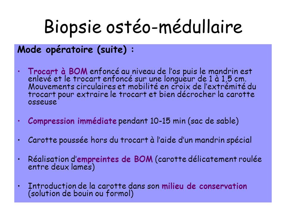 Biopsie ostéo-médullaire