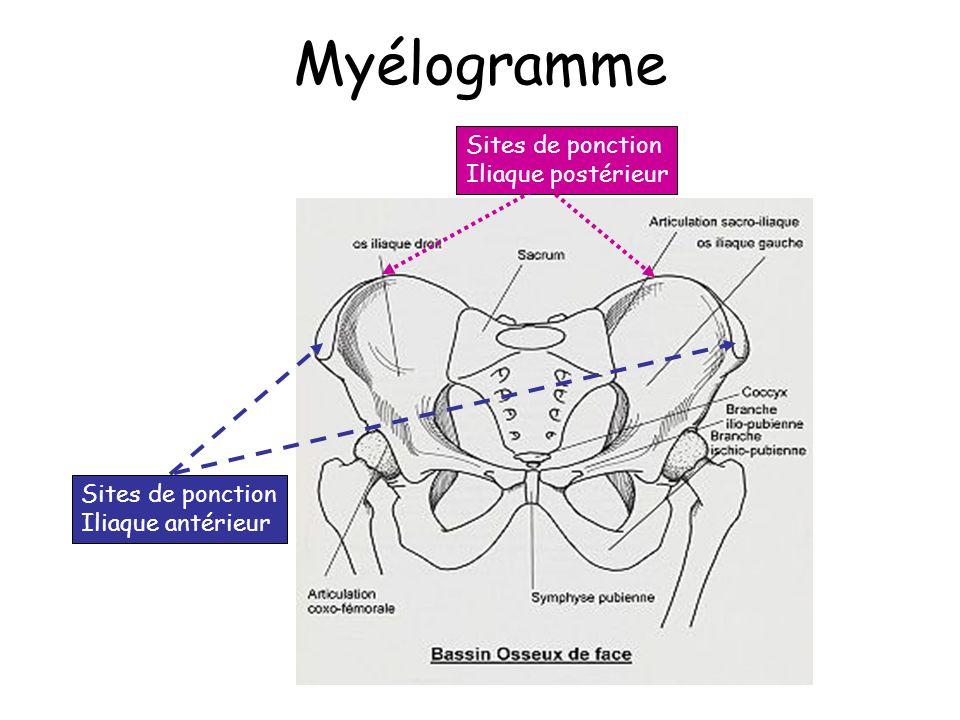 Myélogramme Sites de ponction Iliaque postérieur Iliaque antérieur