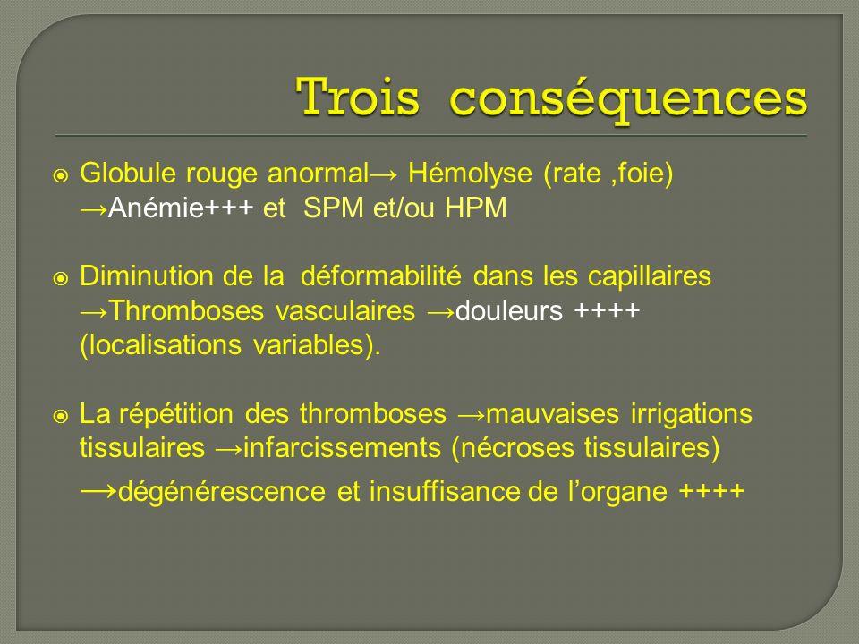 Trois conséquences Globule rouge anormal→ Hémolyse (rate ,foie) →Anémie+++ et SPM et/ou HPM.