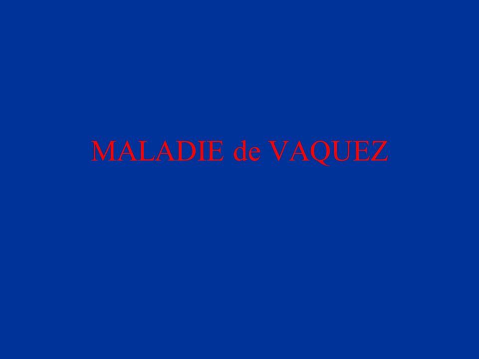MALADIE de VAQUEZ