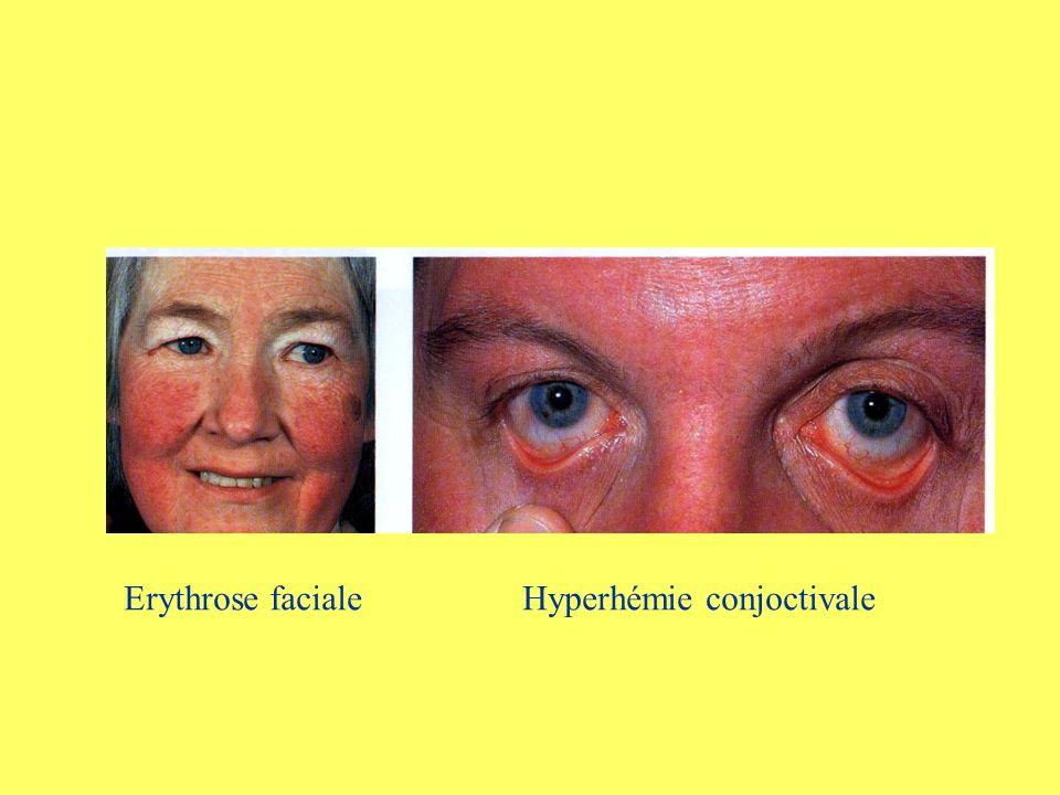 Erythrose faciale Hyperhémie conjoctivale