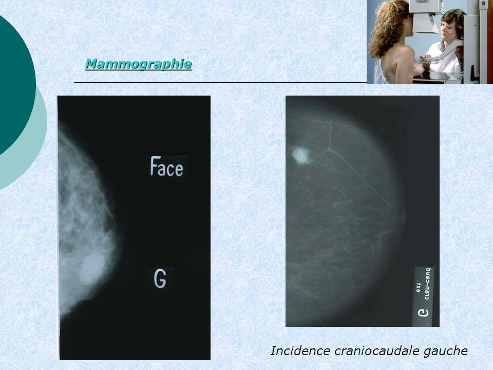 Mammographie Incidence craniocaudale gauche