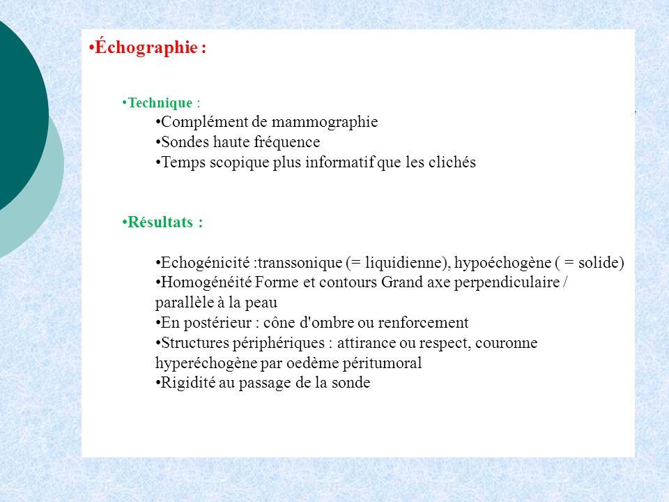 Échographie : Complément de mammographie Sondes haute fréquence