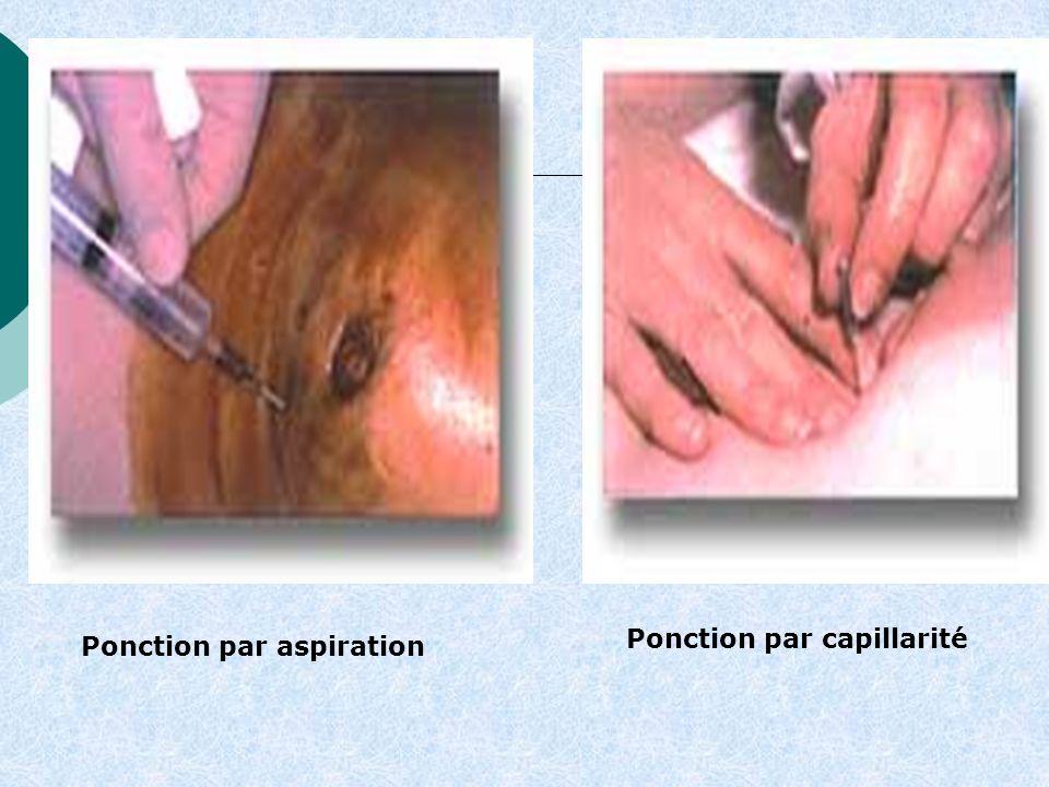 Ponction par capillarité