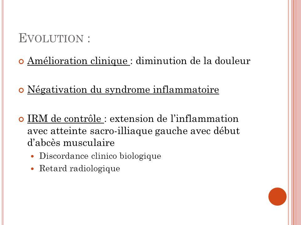 Evolution : Amélioration clinique : diminution de la douleur