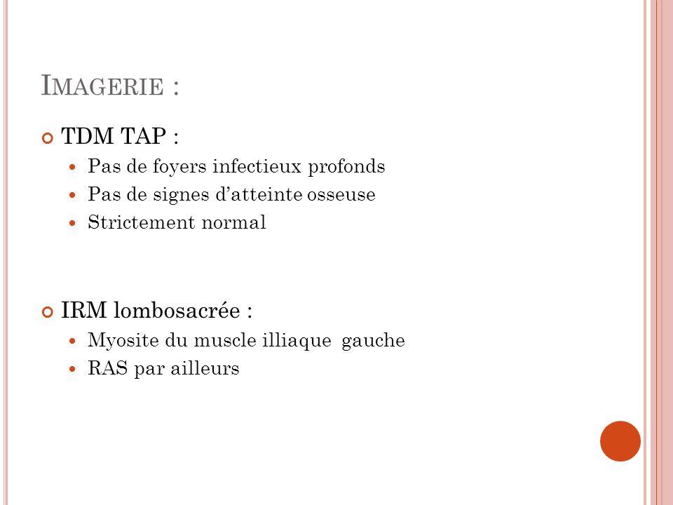 Imagerie : TDM TAP : IRM lombosacrée :