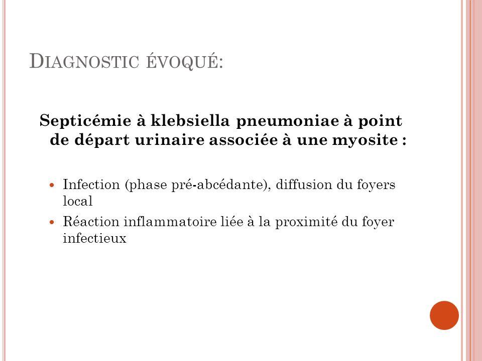Diagnostic évoqué:Septicémie à klebsiella pneumoniae à point de départ urinaire associée à une myosite :
