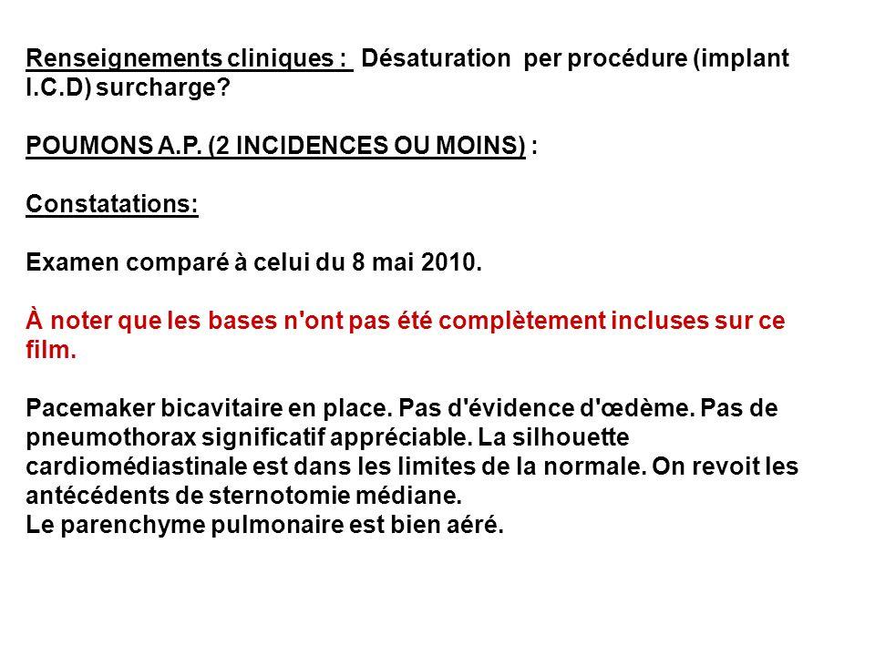 Renseignements cliniques : Désaturation per procédure (implant I. C