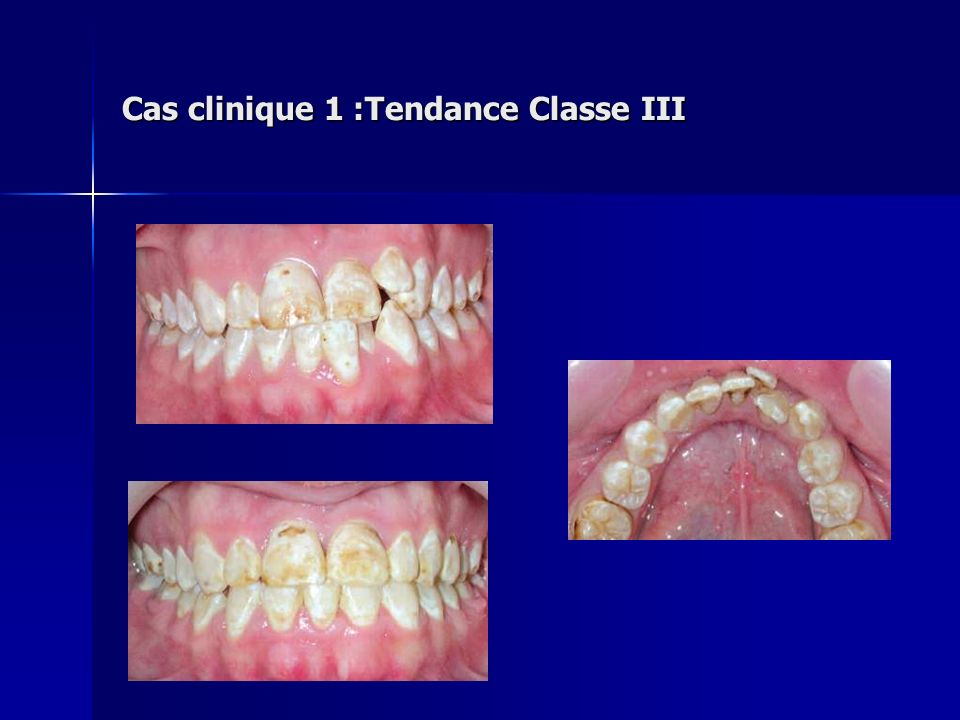 Cas clinique 1 :Tendance Classe III