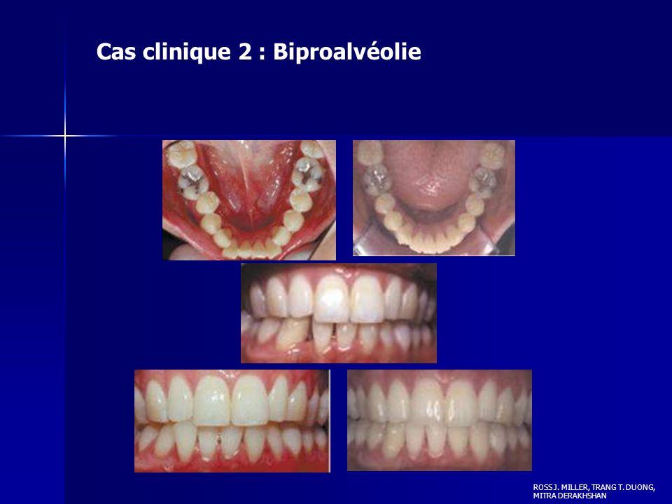 Cas clinique 2 : Biproalvéolie