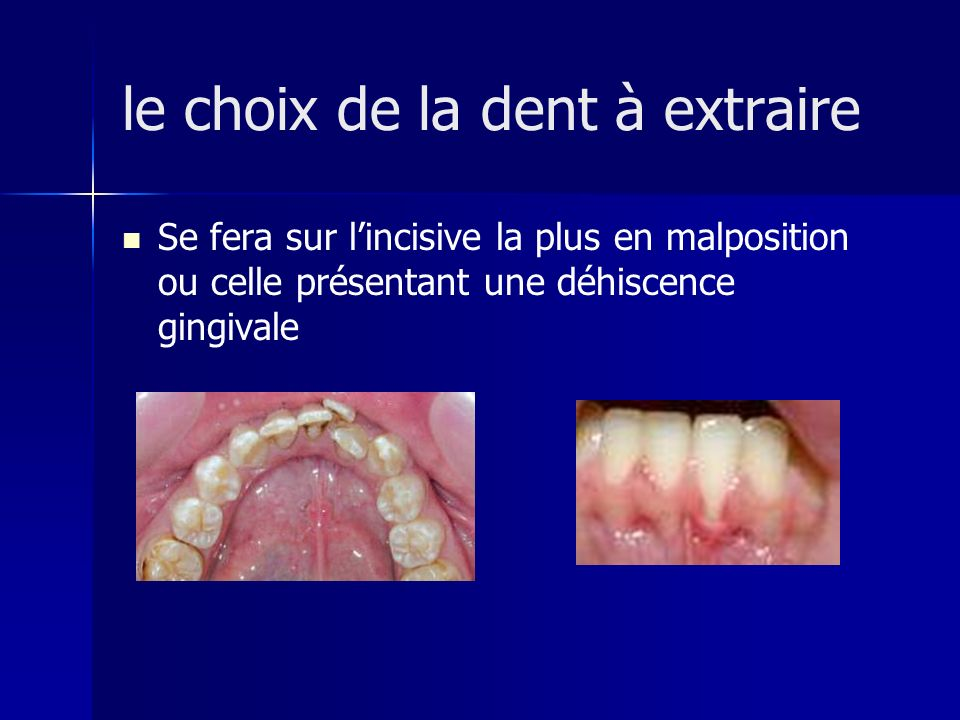 le choix de la dent à extraire
