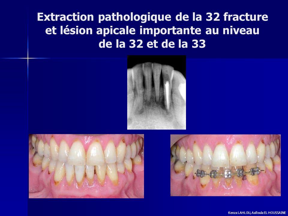 Extraction pathologique de la 32 fracture et lésion apicale importante au niveau de la 32 et de la 33