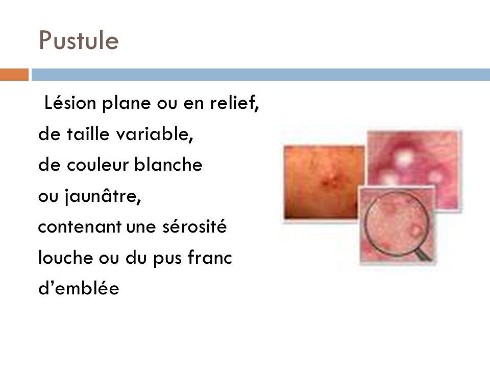 Pustule Lésion plane ou en relief, de taille variable, de couleur blanche ou jaunâtre, contenant une sérosité louche ou du pus franc d'emblée