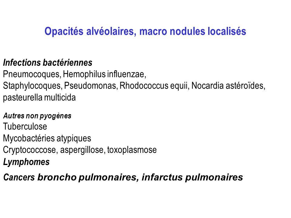 Opacités alvéolaires, macro nodules localisés