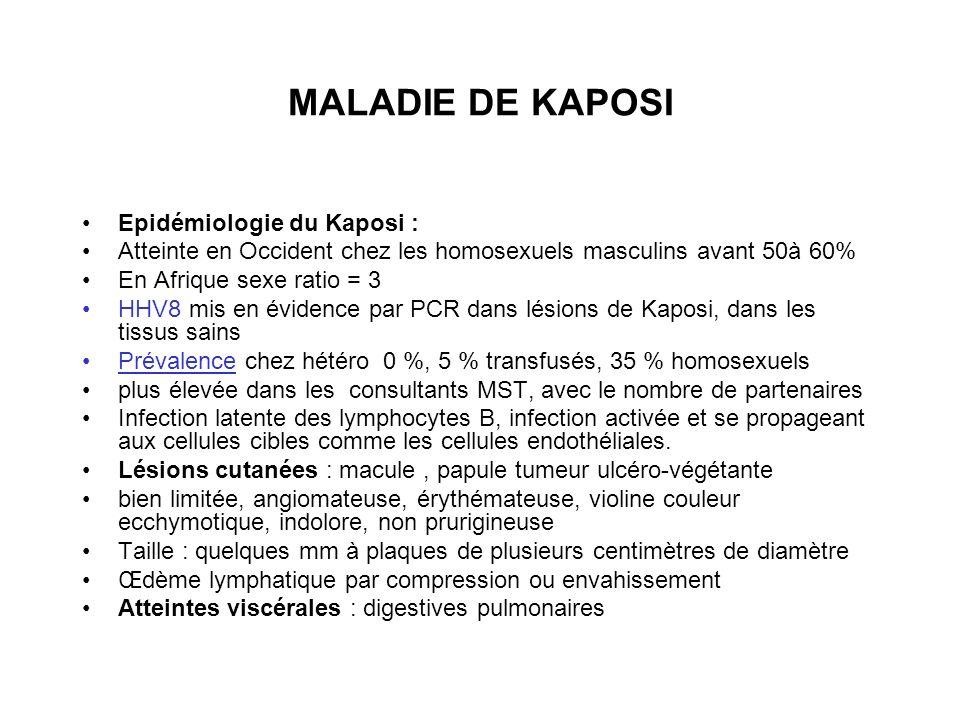 MALADIE DE KAPOSI Epidémiologie du Kaposi :