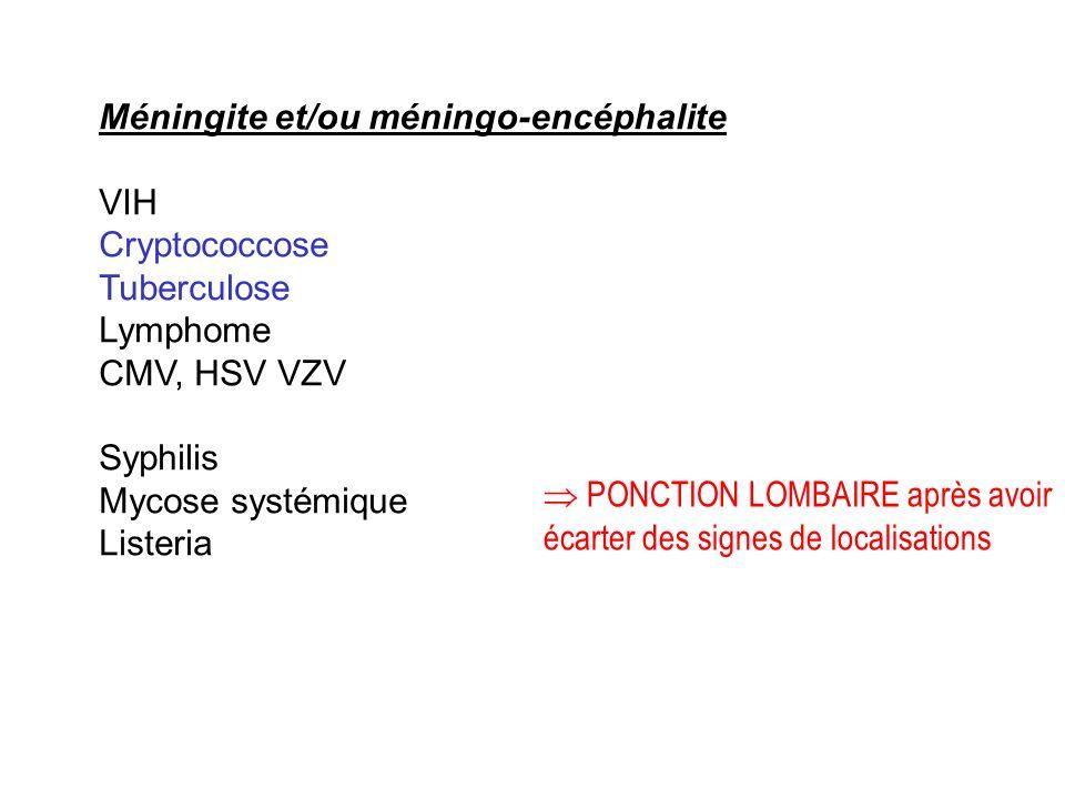 Méningite et/ou méningo-encéphalite