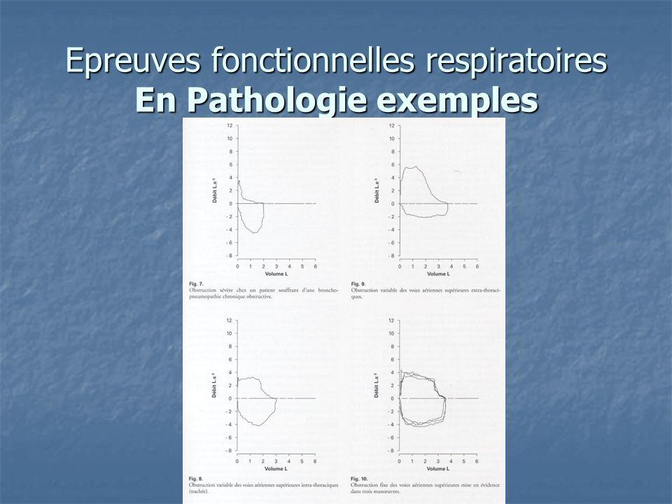 Epreuves fonctionnelles respiratoires En Pathologie exemples