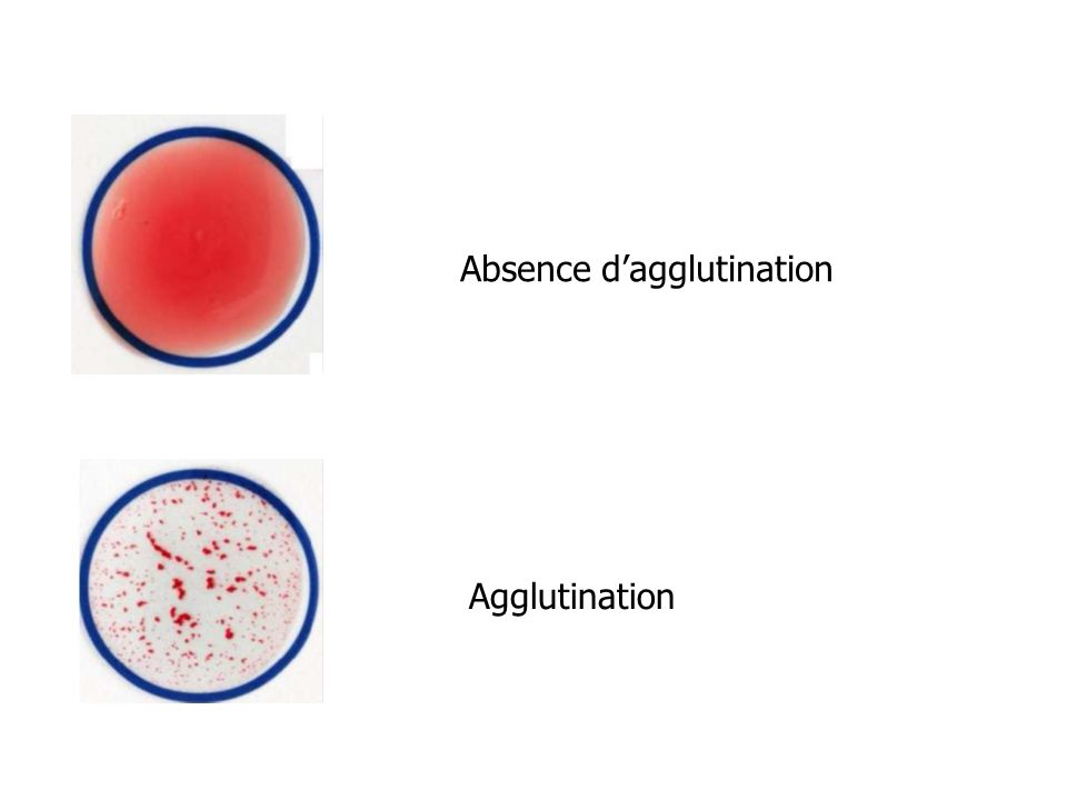 Absence d'agglutination