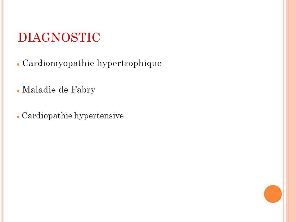 DIAGNOSTIC Cardiomyopathie hypertrophique Maladie de Fabry